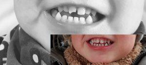Alf hat sich den rechten Schneidezahn abgebrochen, Bild schwarz weiß. Bild bunt nach dem Zahnarzt.